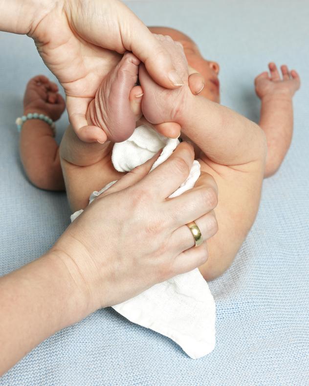 Cómo combatir la dermatitis del pañal en bebés