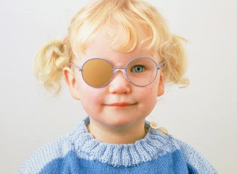 Detectar ojo vago en niños