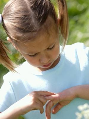 Picaduras de mosquitos en niños y bebés