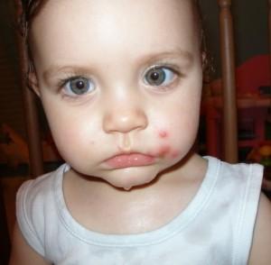 Herpes labial en niños
