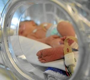 fracturas en bebés recién nacidos