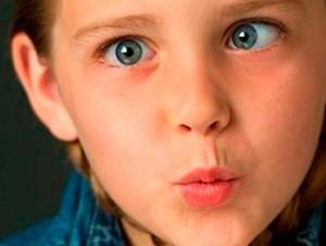 Ambliopía en niños