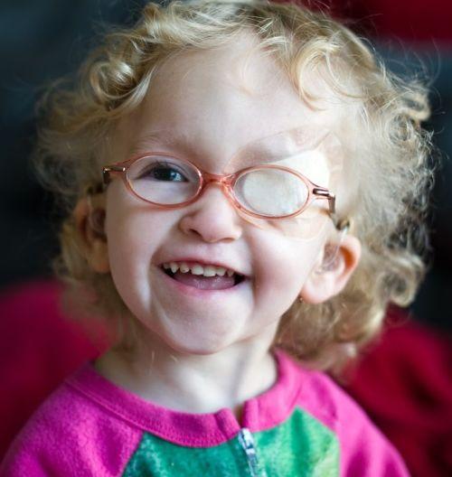 Ambliopía en niños tratamiento
