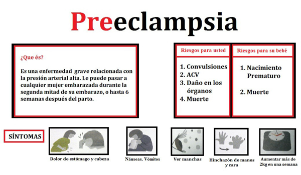Preeclampsia embarazo