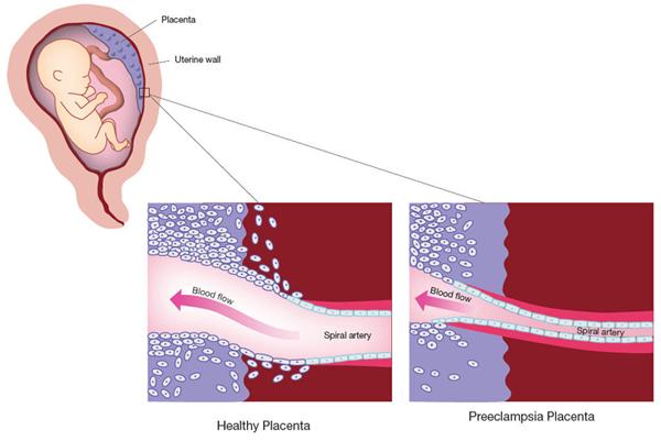 Preeclampsia tratamiento