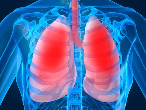 fibrosis quistica imagenes