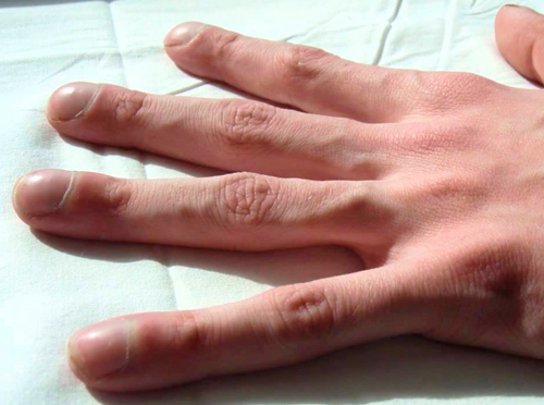 fibrosis quistica pulmonar