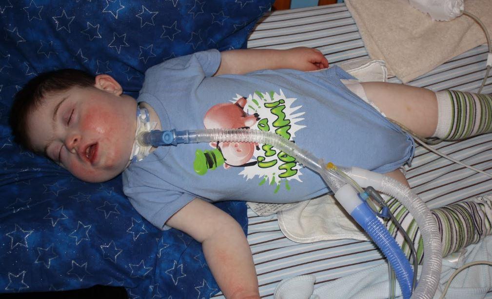 apnea del sueño niños fotos