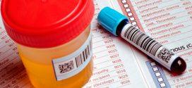 Eosinófilos altos en niños; Síntomas, causas y tratamiento