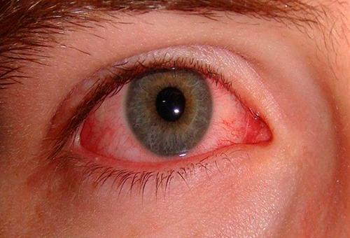 imágenes enfermedad infantil