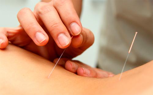 dolor ovarios ovulación acupuntura