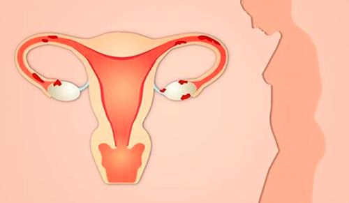 ovulacion ovarios poliquisticos
