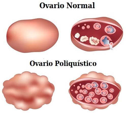 ovario normal y ovario poliquistico