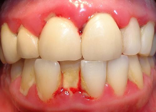 gingivitis en niños de 6 a 12 años