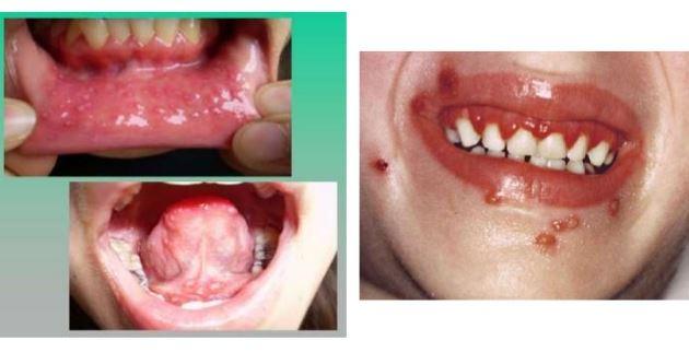 gingivoestomatitis herpetica en niños