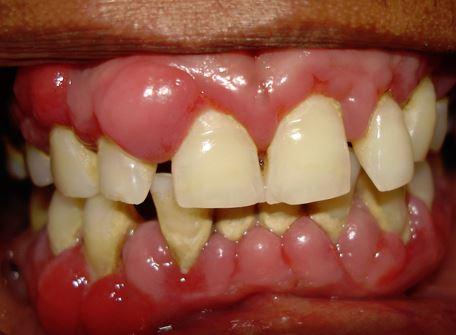 periodontitis avanzada sintomas