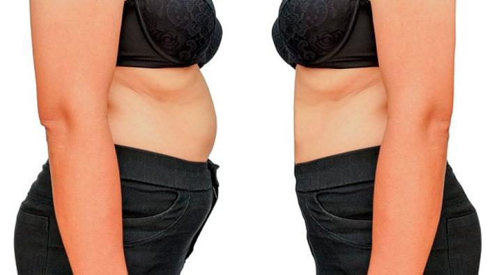 diástasis abdominal embarazo