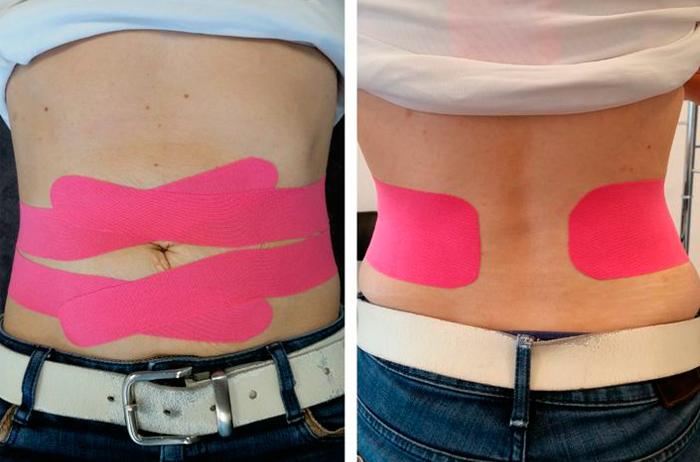 hernia abdominal fotos