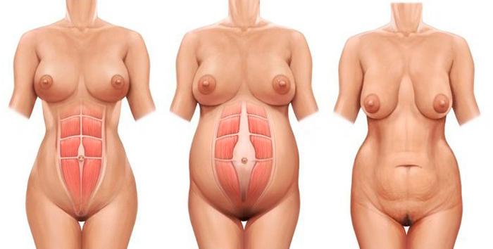 recto anterior abdomen