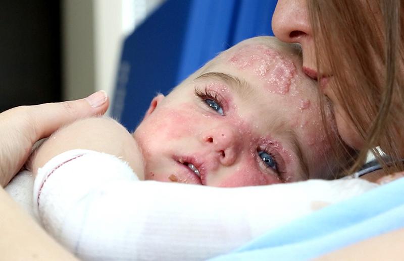 síndrome de piel de mariposa bebes
