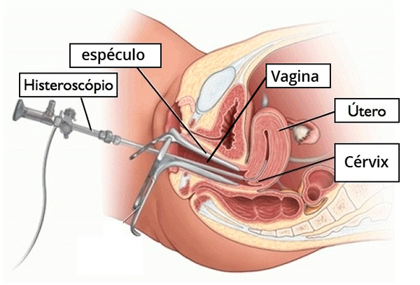 que es una histeroscopia diagnostica