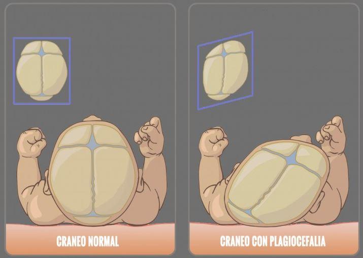 craneo plagiocefalia y craneo normal infografia