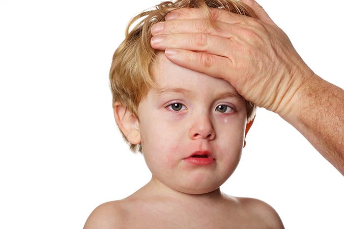migraña en niños tratamiento