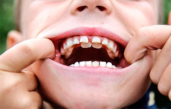dientes de un niño de 6 años