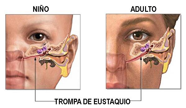 dolor de oido tratamiento niños y adultos