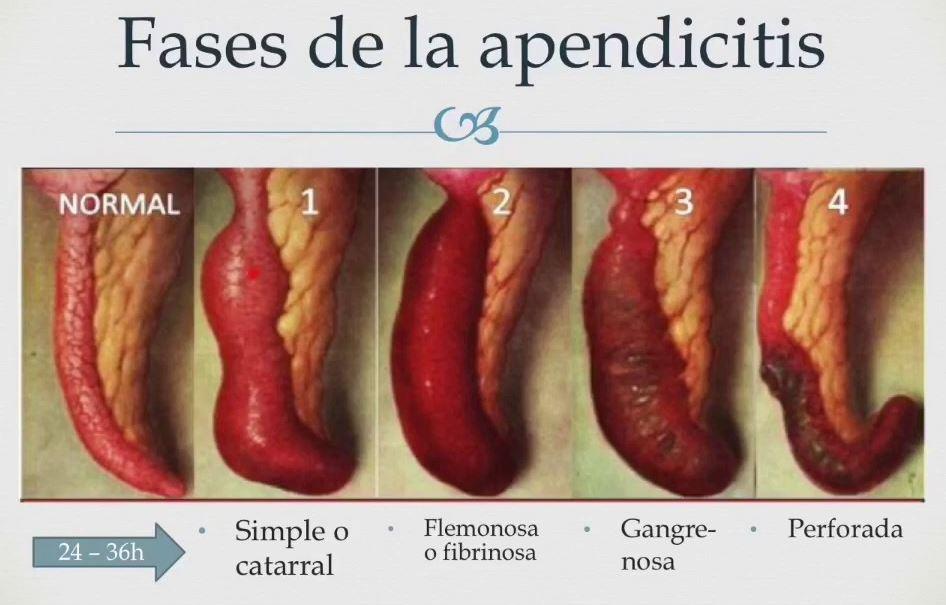 fases de la apendicitis en niños