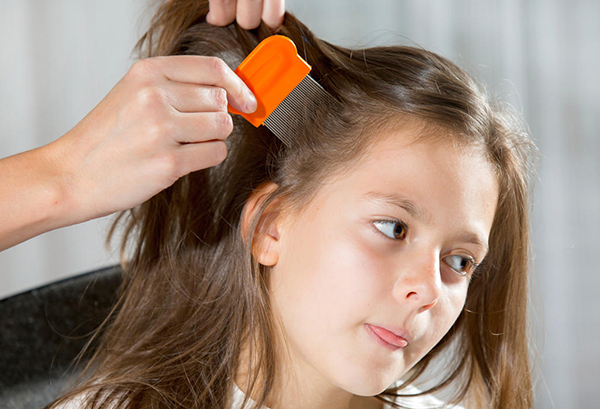 picor cuero cabelludo causas
