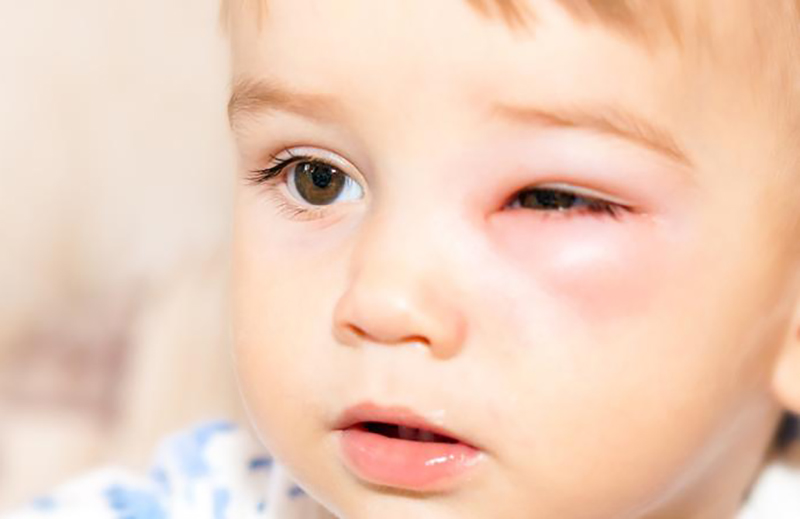 shock anafilactico sintomas