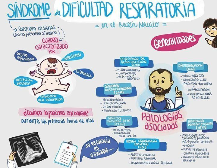 sindrome de dificultad respiratoria bebes infografia