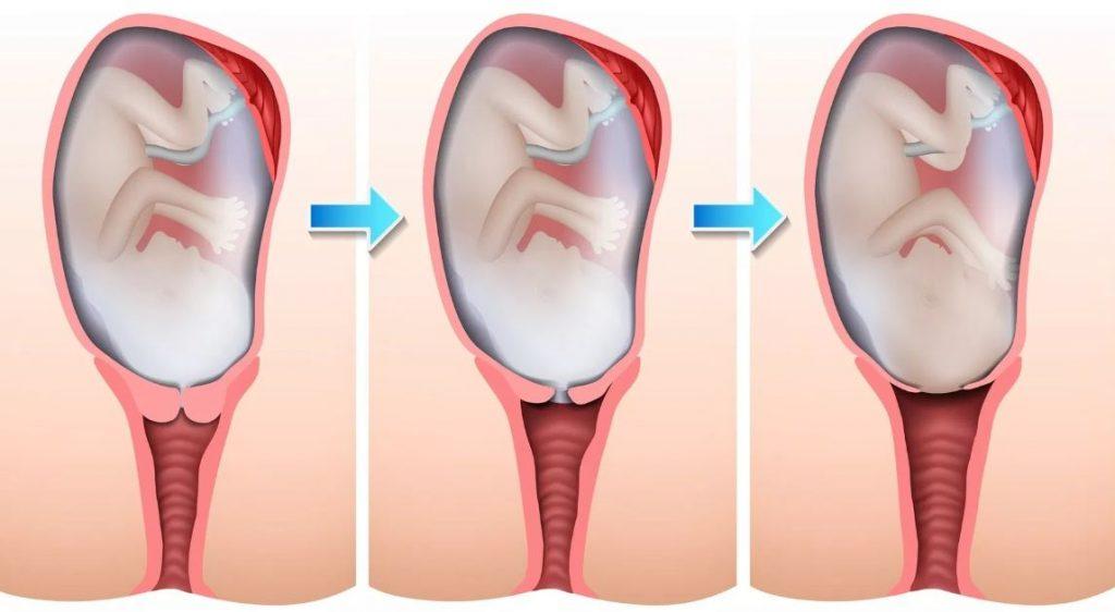 cuales son las fases del parto resumen