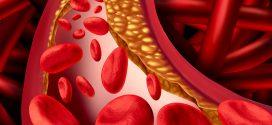 Alimentos para bajar el colesterol en niños