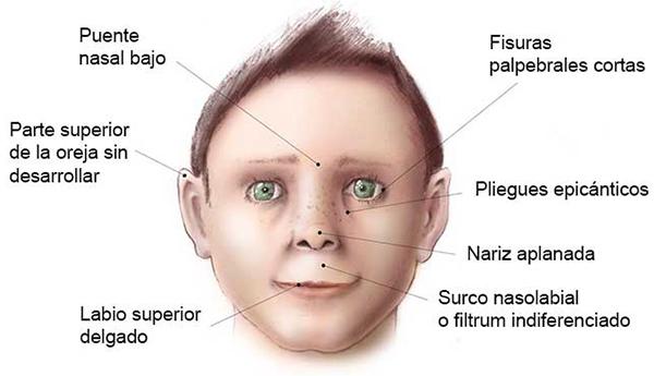 alcoholic facial features