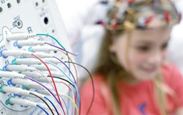 crisis epileptica sintomas
