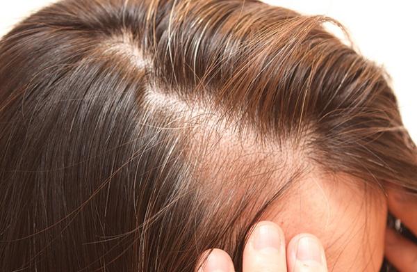caída del cabello después del parto