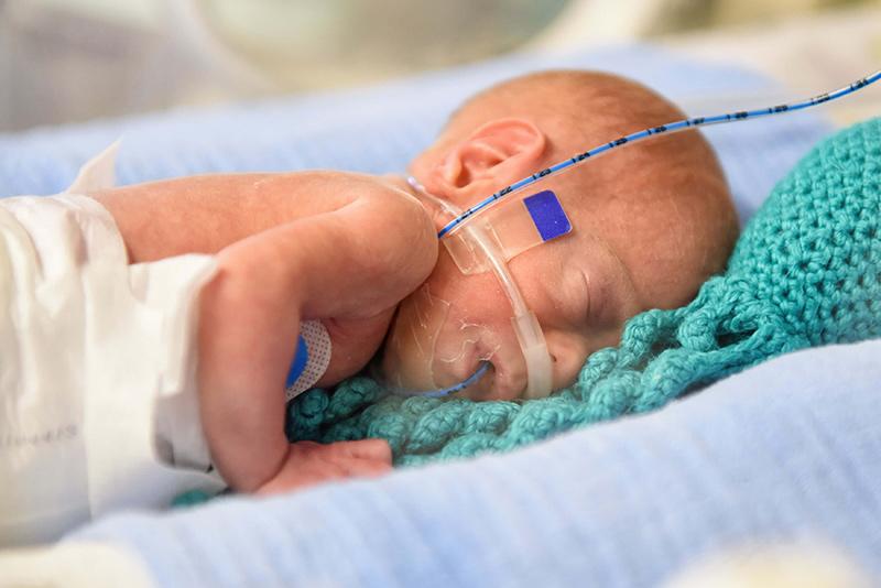 nacimiento prematuro causas