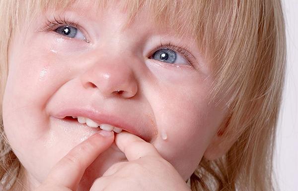 cuanto dura un herpes labial