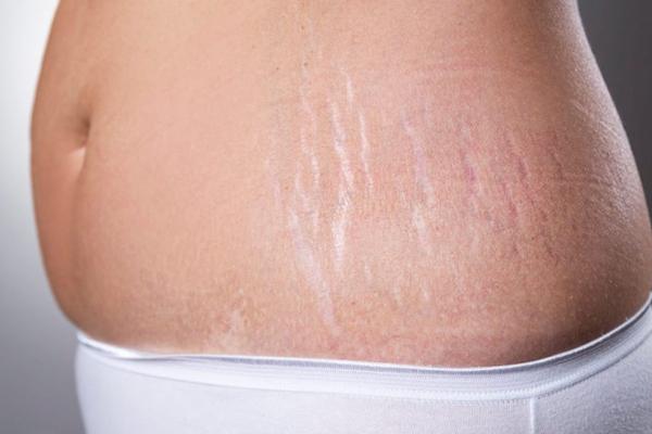 como quitar las estrias del abdomen