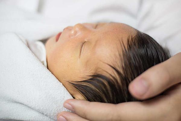 ictericia fisiologica recien nacido