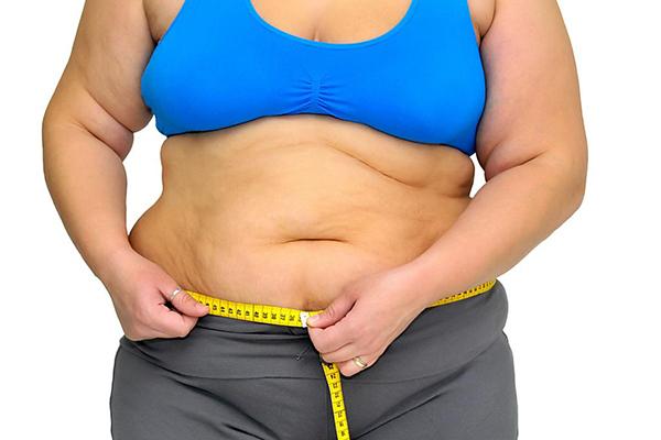 sobrepeso y embarazo